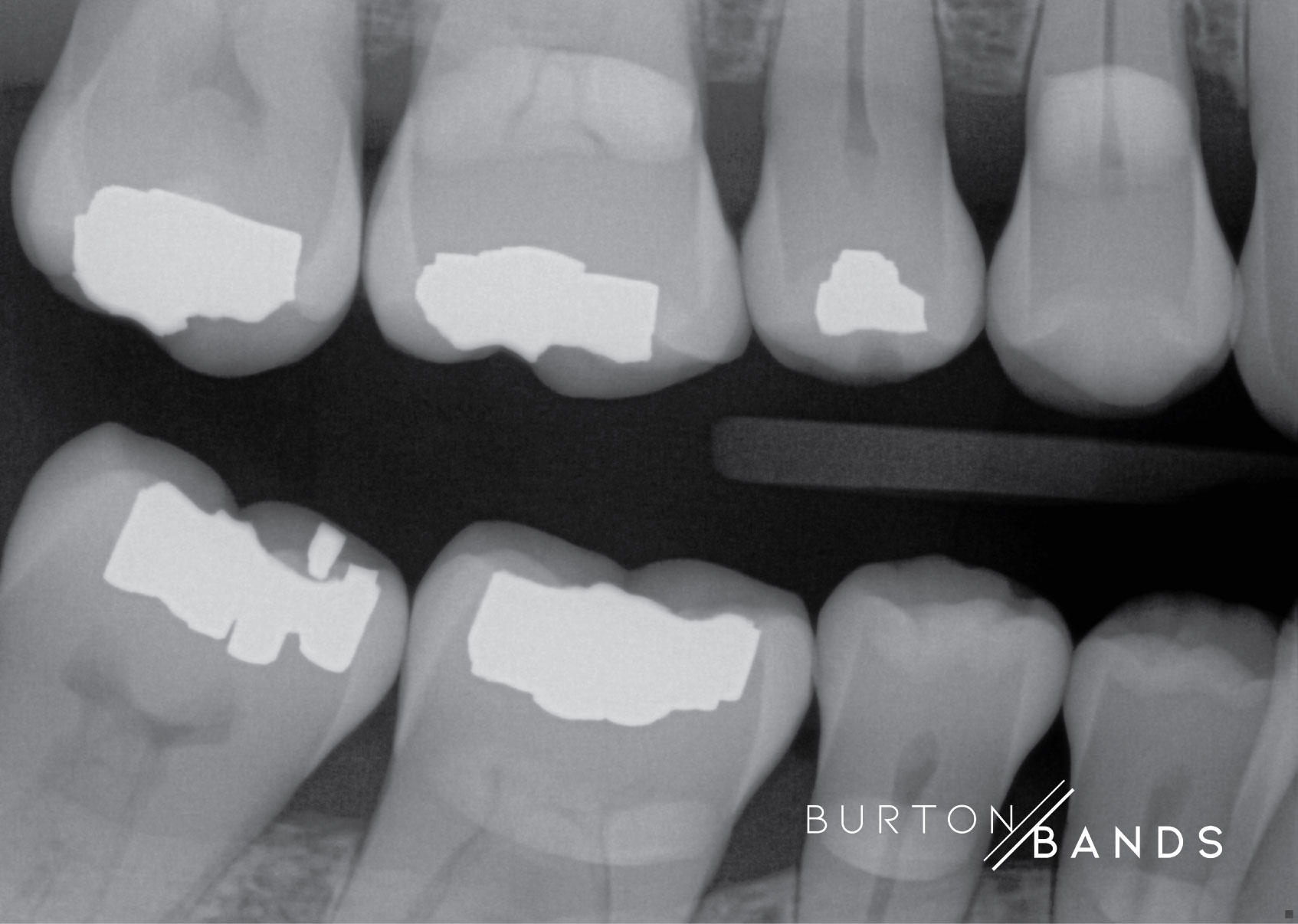 burton-image-1.jpg