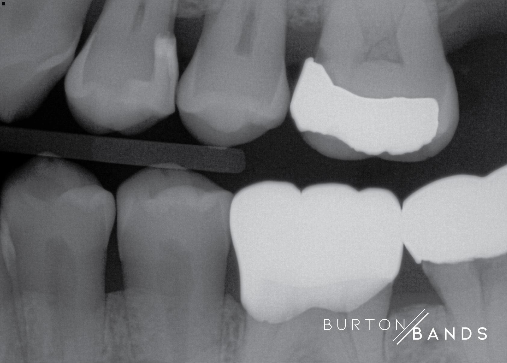 burton-image-3.jpg