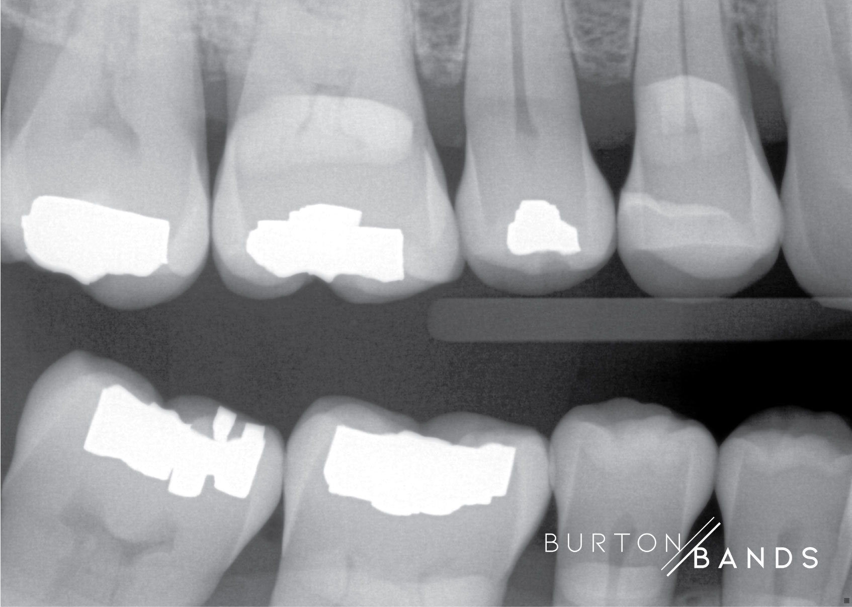 burton-image-2.jpg
